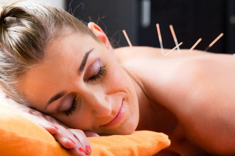 woman getting acupuncture therapy