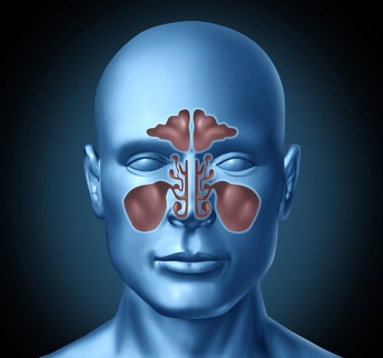 3d image of chronic sinus